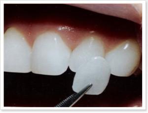 facettes-dentaires(1)